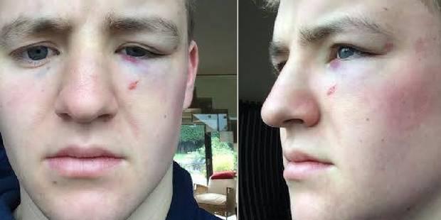 Un jeune Britannique tabassé et humilié par des policiers - La DH