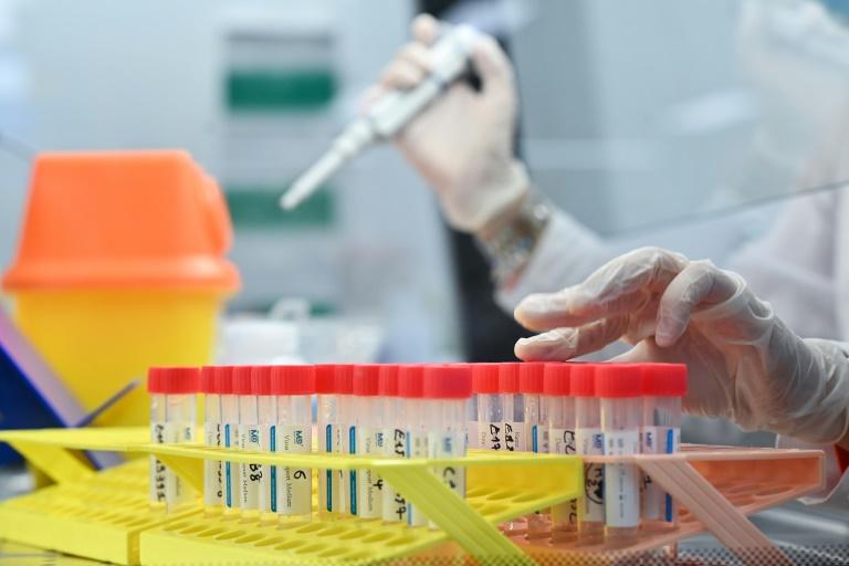 Covid-19 - Plus contagieux, plus résistants, plus anxiogènes: ce qu'on sait des variants - dh.be