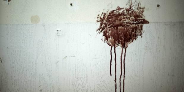 Un voleur met des coups de boule à un mur pour faire croire à une violence policière - La DH