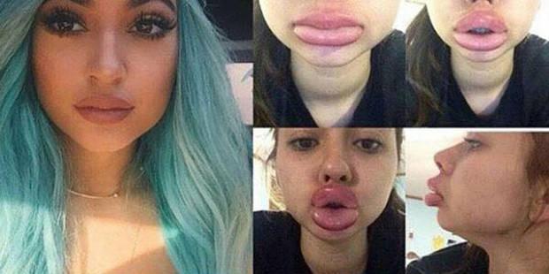 """Le """"Kylie Jenner Challenge"""", le nouveau jeu inquiétant des ados - La DH"""