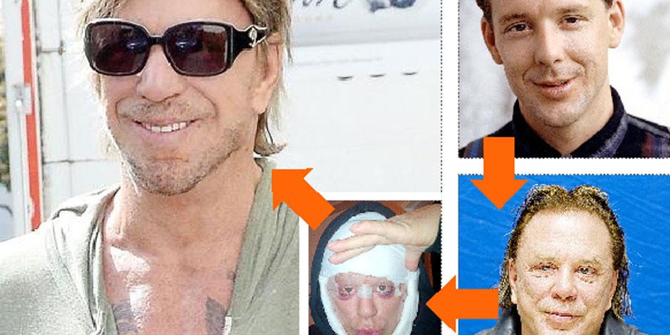 Les ravages de la chirurgie à Hollywood