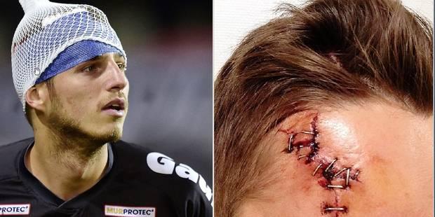 Des séquelles morales, mais surtout physiques après le derby: la terrible plaie de Steeven Willems - La DH