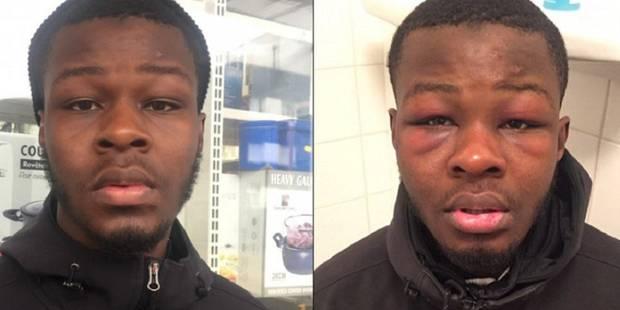 France: Mohammed K., un ami de Théo, raconte avoir été lui aussi tabassé par le même policier (VIDEO) - La DH