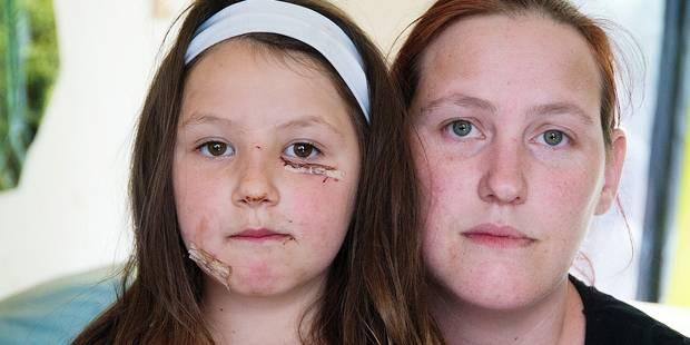 Shanae, sept ans, mordue au visage par un malinois - La DH