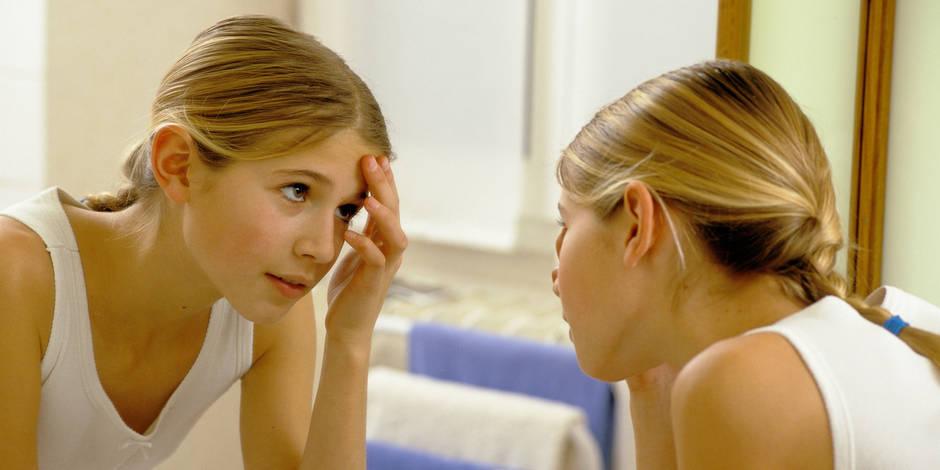 #Skinpositivity, un hashtag pour assumer son acné